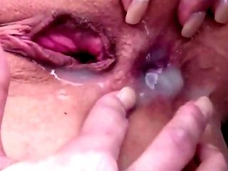 Amateur, Anal Sex, Ass Fucking, Clamp, Close Up, Cum, Cum On Ass, Cumshot, German, HD,